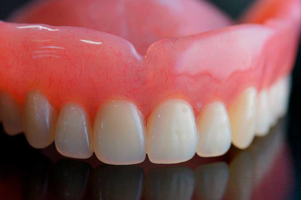 протезирование-зубов-фото